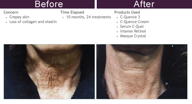 Environ Ultrasond - Facial Lift in Midtown East