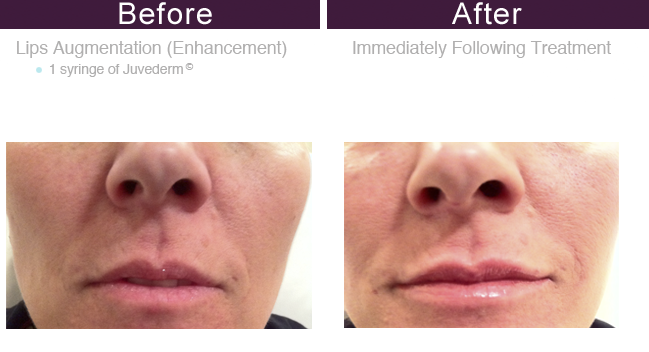 Midtown East Juvederm Injections | Voluma Injections in